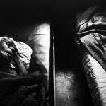 Trąd - lepra - choroba Hansena